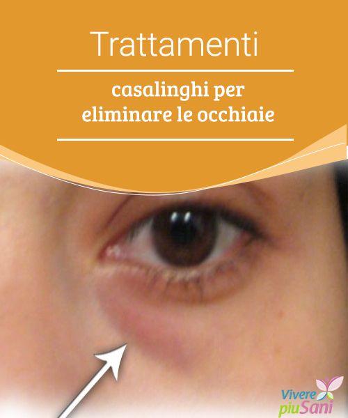 Trattamenti casalinghi per eliminare le occhiaie  Rimedi naturali e consigli per eliminare le occhiaie una volta per tutte