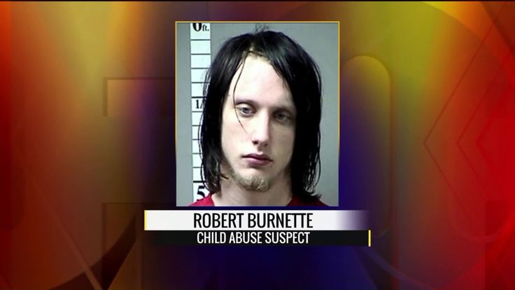 WENTZVILLE, MO (KTVI) - Investigators gave an update Monday on a horrific case of child abuse in St. Charles County that left a baby boy in critical condition. We're told it is one of the worst child abuse cases Wentzville police have ever seen.  Police say this all started last week when Robert Burnette couldn't deal with the crying from his 6-week-old baby. He decided to shove his fingers down the baby's throat to stop the crying. St. Charles County investigators also say the child's…