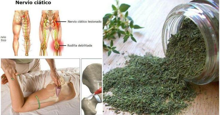 Estos remedios caseros, específicamente diseñados para los dolores de ciática, aliviarán cualquier tipo de molestia.