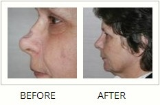 Rhinoplasty surgery, also known as nose surgery or nasal surgery is the second most common plastic surgery performed on the face.