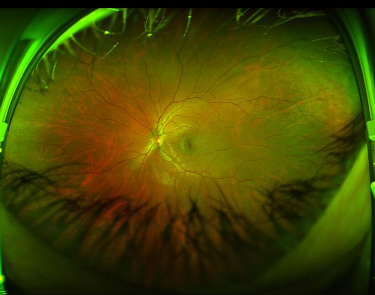 I had an eye exam today and they took a photo of my optic nerve   fun funny funny pics