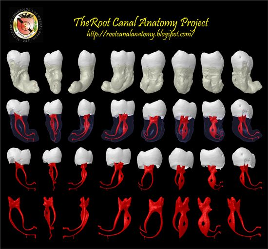 """Stop doing endodontics (Root Canals) in the dark! The """"Root Canal Anatomy Project"""" www.RootCanalAnatomy.blogspot.com sheds a lot of light on tooth root canal anatomy! It is beyond amazing. I would like to congratulate Prof. Marco A. Versiani, DDS, MS, PhD, Prof. Jesus D. Pécora, DDS, MS, PhD, & Prof. Manoel D. Sousa Neto, DDS, MS, PhD for all that they have done for endodontics and dentistry. Howard Farran DDS, MBA Founder & CEO of www.Dentaltown.com"""