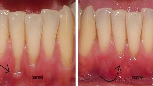 Diş Eti Çekilmesi Öncesi ve Sonrası