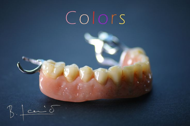 Characterized Co/Cr partial denture