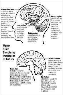 Brain structures implicated in autism