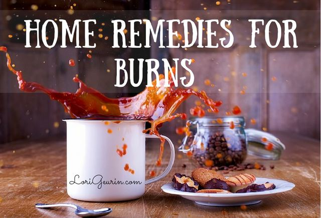 Learn about many effective natural remedies for treating burns including honey, aloe vera, coconut oil, lavender essential oil and raw potatoes.
