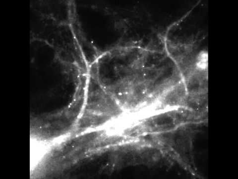 Ever wondered what it looks like when your brain makes a memory? Wonder no more: scientists have captured the process on video.