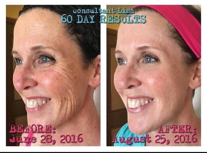 Get rid of wrinkles! Bring back your youth! #rodan+fields #redefine