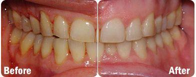 Dental probiotic...works wonders