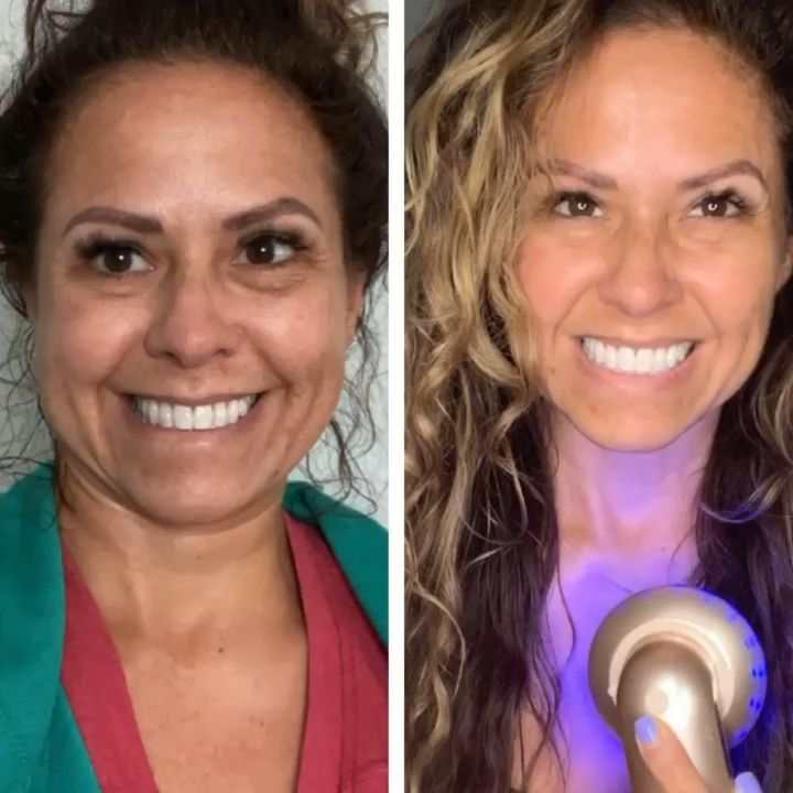 I will show you how I'm using my Ultrasonic face & body care device on my  décolletage to reduce the look of my brown spots.  Make sure to subscribe to my newsletter  and YouTube channel for more great videos! #diy #skincare #for #the #best #antiaging #results #please #try #friday #and #weekend #athome #care #removeskinwrinkles #collagen #strengh