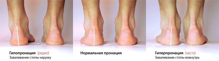 как правильно подобрать обувь для бега - Поиск в Google