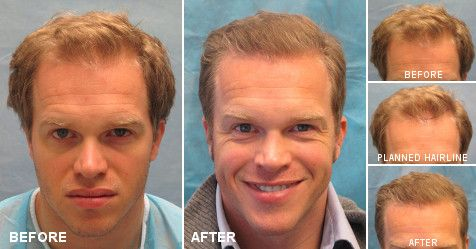 Patient ACM was a Norwood Class 6 before his #hairtransplant. He had one hair transplant of 2,168 follicular unit grafts which broadened his hairline! Check out his Patient Profile on the official #BernsteinMedical website! https://www.bernsteinmedical.com/hair-transplant-photos/portraits/patient-acm/?utm_source=pinterest.com&utm_medium=referral&utm_campaign=Pinterest-HR-P