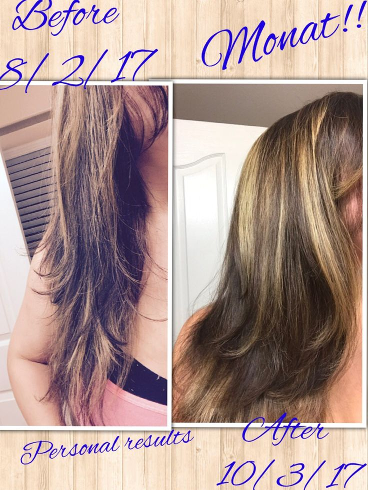Two month results from using Monat after postpartum hair