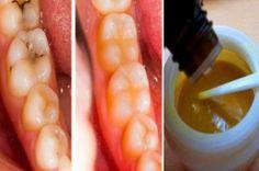 diş çürüklerinin tedavisi