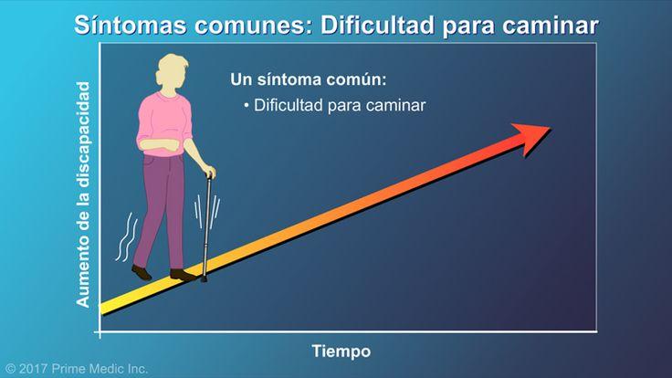 Un síntoma común es la dificultad para caminar. En estudios realizados antes del inicio de los tratamientos modificadores de la enfermedad, aproximadamente la mitad de las personas con EM desarrollaba algunos problemas para caminar a medida que la enfermedad avanzaba.slide show: explicación de la esclerosis múltiple. en esta presentación de diapositivas se describen las causas, los síntomas comunes y la naturaleza de la esclerosis múltiple, así como distintos tipos de farmacoterapias…