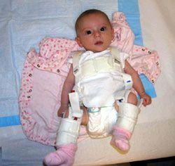 Femur Fractures in Children: Treating a Child's Broken Thighbone ...