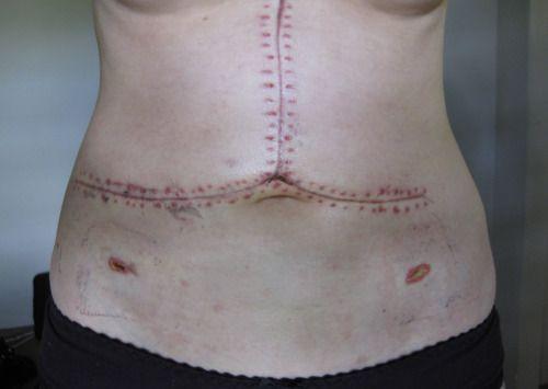 Post-Liver transplant surgical scars