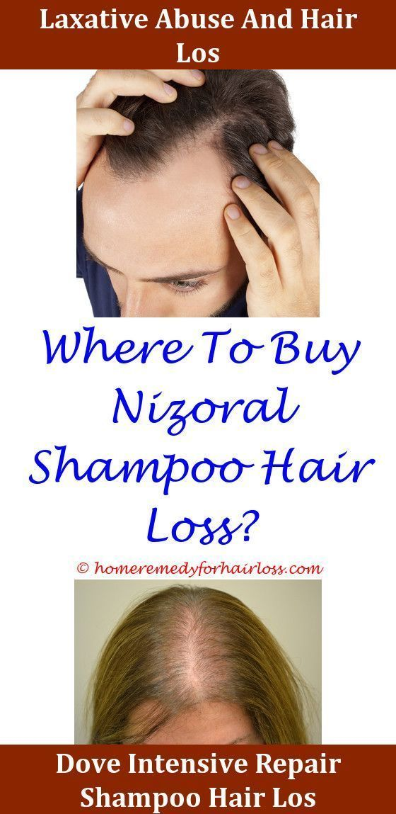 Hair Loss Mesalamine Hair Loss Hair Loss Hair Loss Famous Ferritin