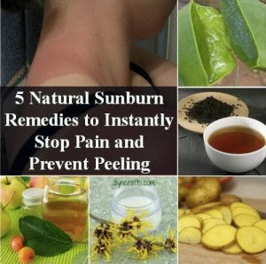 5 Natural Sunburn Relief Remedies To Instantly Stop Pain & Prevent Peeling #instantasthmarelief