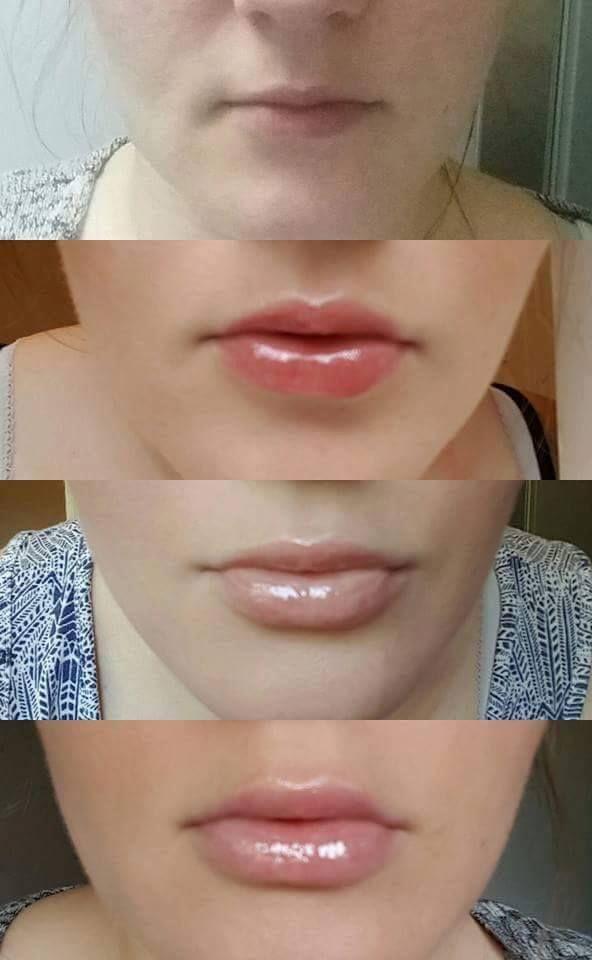 Csillámló szájfény a formás fiatalos ajkakért! <3 Élénkíti a kollagén termelést ,ezáltal segíti a teltebb ajkak elérésében,28 nap alatt ;) Kiemeli a száj körvonalát.Használható önmagában,vagy kedvenc rúzsunkkal együtt,.Végeredmény ,mindenképp csodás! :)  Ha szeretnéd írj.:) :)