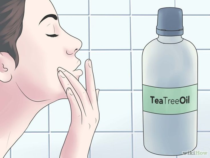 Reduce Pimple Redness and Size (Aspirin Method) Step 7.jpg