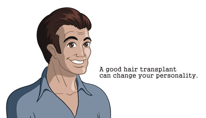 Change your personality by getting Hair Transplant done. #HairTransplant #Hair #Methods #FUE #FUT #Results #DrSoodsClinic