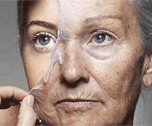 London Women In Awe: Never Use Botox Again, Do This Instead
