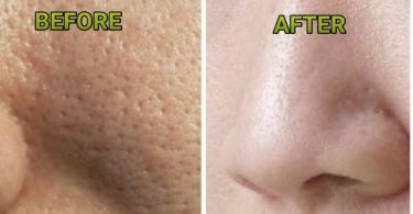 REMOVE AND PREVENT BROWN SPOTS WITH THESE 2 NATURAL INGREDIENTS. AMAZING!