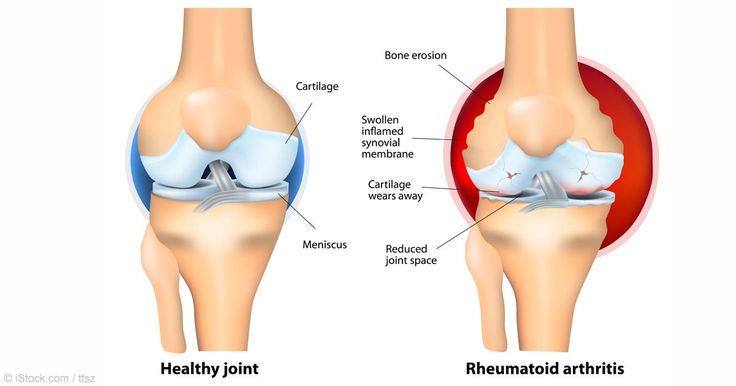Rheumatoid arthritis is an autoimmune disease where your body is destroying itself, and less than one percent of people with it have spontaneous remission. http://articles.mercola.com/sites/articles/archive/2015/08/09/rheumatoid-arthritis-remission.aspx