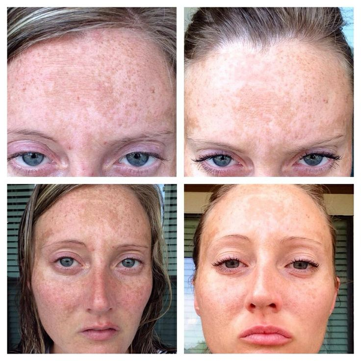 After just 1week of using Rodan+Fields Reverse regimen Jennifer's brown spots from sun damage have faded quite a bit!! Amazing results in a short period of time! Get yours here~ www.kfaller.myrandf.com