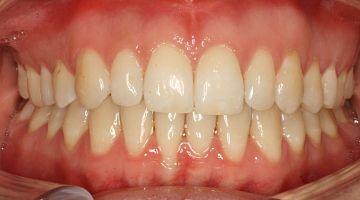 """Лечение и удаление зубов. Примеры работ специалистов стоматологической клиники Ортодонт. """"Стало № 1"""""""