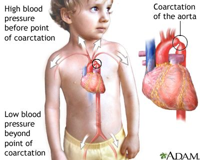 Coarctation of the aorta....this is what they repaired when they did Dylan's first surgery