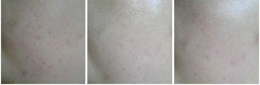 #redergen #brightening #estheticcosmetics  #koreabeauty  #koreacosmetics  #skincare #facialcream #facialbrightening