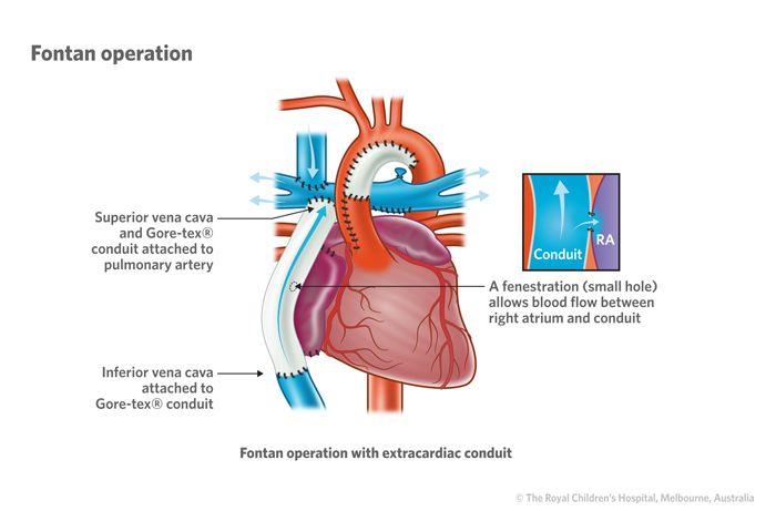 10d Hypoplastic Left Heart Syndrome Conduit