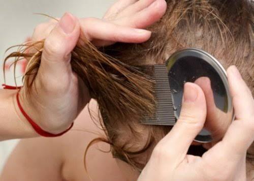 Les poux sont des parasites gênants qui s'attaquent à notre cuir chevelu. Nous allons partager avec vous 7 manières naturelles qui vont vous permettre de les éliminer.
