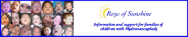 Rays of Sunsine - a portal providing the most comprehensive source of information & online support for families of children with #Hydranencephaly. #Hydrocephalus is often one of the first difficulties faced by a child with #hydranencephaly.