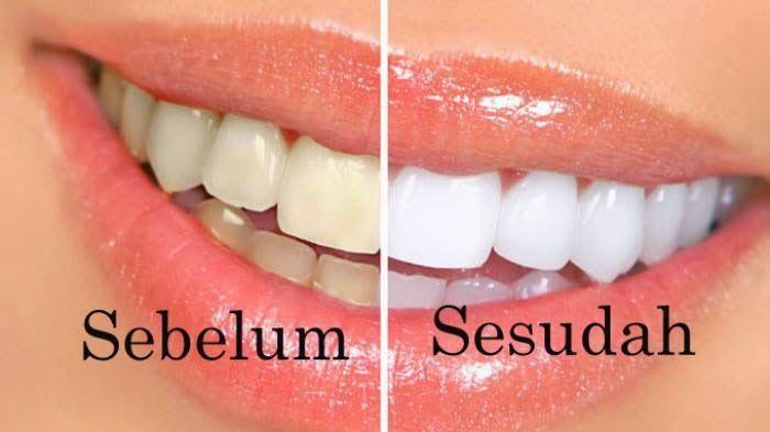 Inilah Cara Putihkan Gigi Menggunakan Belimbing - Obat Herbal, Obat Alami