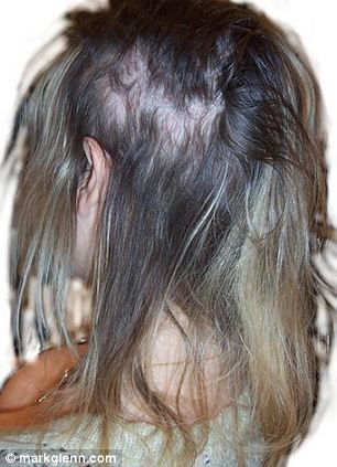 From Blinding Headaches To Bleeding Scalps And Permanent Baldness The Hidden Dangers Of Hair Extensions Revealed