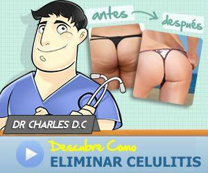 3 Simples Trucos Para Eliminar la Celulitis Rapido La mayoría de mujeres tiene la mala fortuna de tener celulitis su cuerpo en alguna etapa de su vida. Las mujeres estamos genéticamente hech...