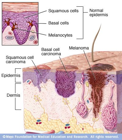 Skin cancer begins in the cells that make up the outer layer (epidermis) of your skin. One type of skin cancer called basal cell carcinoma begins in the basal cells, which make skin cells that continuously push older cells toward the surface. As new cells move upward, they become flattened squamous cells, where a skin cancer called squamous cell carcinoma can occur. Melanoma, another type of skin cancer, arises in the pigment cells (melanocytes).
