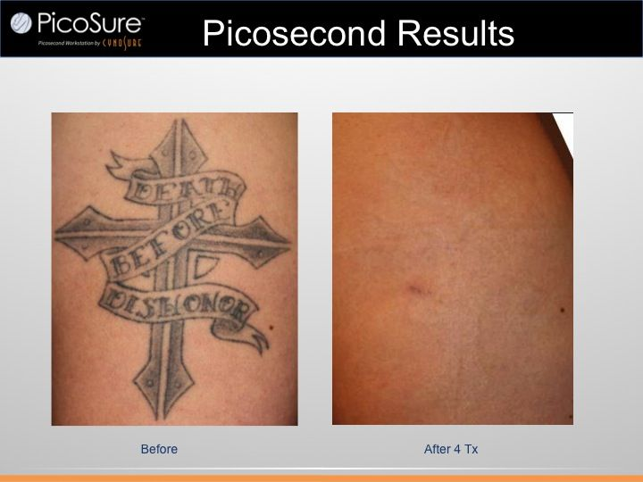PicoSure LaserTattoo Removal with Dr. Diktaban NYC Plastic Surgeon