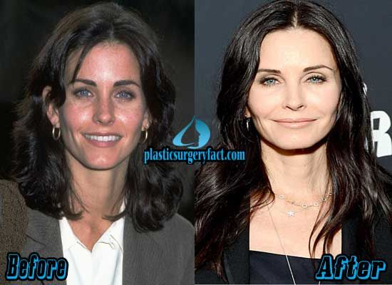 Courteney Cox Before and After Plastic Surgery | http://plasticsurgeryfact.com/courteney-cox-plastic-surgery-before-and-after-photos/
