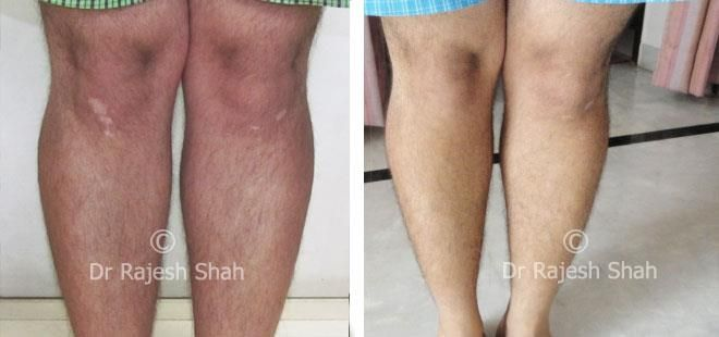 Vitiligo treatment with homeopathy is promising and without any side effects, find more on causes, symptoms, diet and other treatment options available for vitiligo.