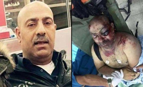 Ahmad Izz Halaweh before and after his encounter with PA security officers…