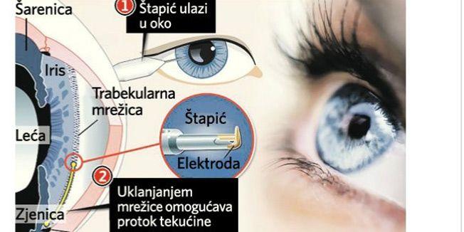 Električna četkica uklanja glaukom za samo 15 minuta - Jutarnji.hr
