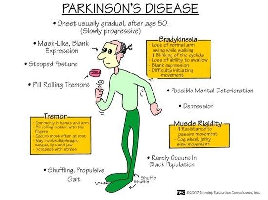 Parkinson S Disease Because I Am A Nurse Pinterest
