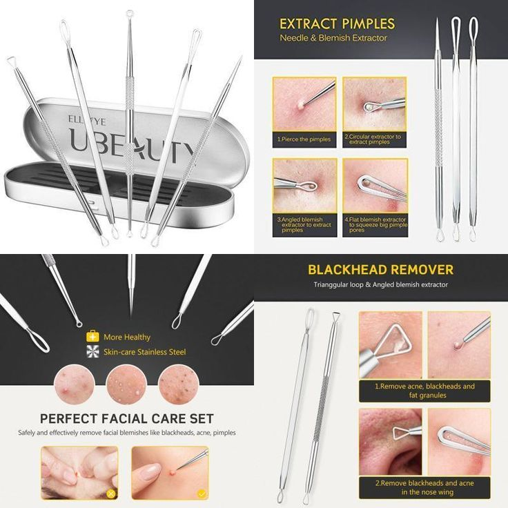 Acne treatment Blackhead Remover Kit Pimple removal Comodone Extractor 4 Piece #ElleSye
