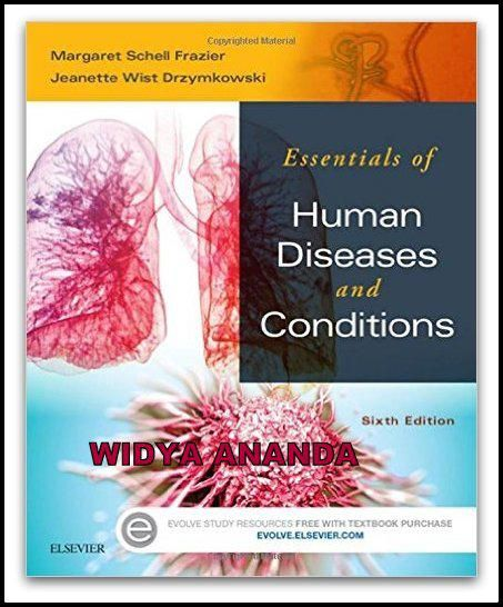 Essentials of Human Diseases and Conditions 6th Edition  by Margaret Schell Frazier RN CMA BS (Author), Jeanette Drzymkowski RN BS (Author)   Product Details Paperback: 976 pages Publisher: Saunders; 6 edition (October 15, 2015) Language: English ISBN-10:  ISBN-13: 978- Product Dimensions: 7.5 x 1.3 x 9.1 inches   Get a firm grasp of disease and disease process as it relates to your job with Essentials of Human Diseases and Conditions, 6th Edition. Perfectly tailored to the needs to…