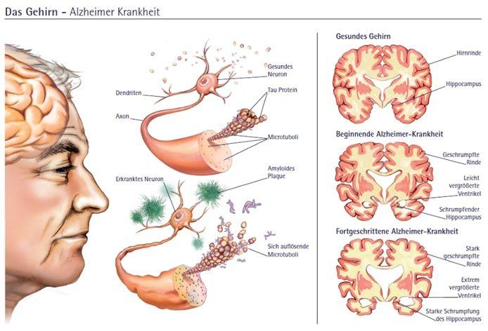 10 signes précurseurs de la maladie d'Alzheimer