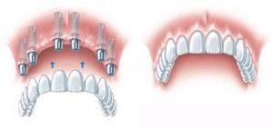Visit us for orthodontic treatment in Paschim Vihar and Punjabi Bagh, Delhi. We offer low cost dental implants in Paschim Vihar, Punjabi Bagh Delhi.